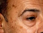 درمان خانگی لکههای قهوهای